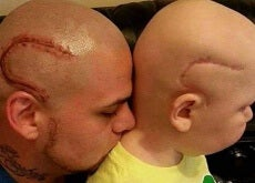 padre-con-su-hjo-de-cáncer
