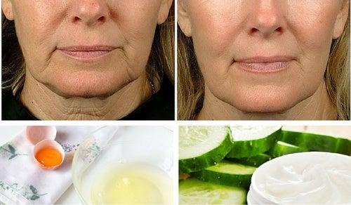 como puedo combatir la flacidez del rostro