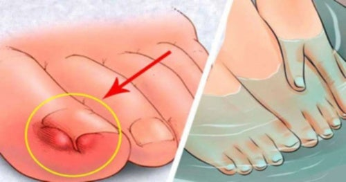 6 remedios caseros para aliviar las uñas encarnadas