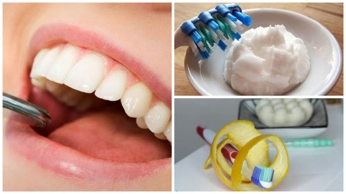 6 trucos caseros para remover el sarro acumulado en los dientes