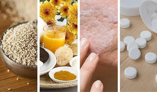 Mejora el acné con estas 5 mascarillas naturales