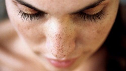 Estas 6 soluciones naturales te ayudarán a remover las manchas y los puntos negros