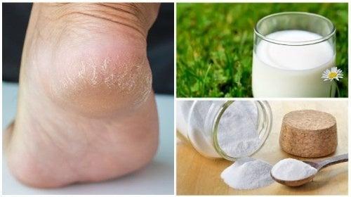 Combina estos dos ingredientes naturales para conseguir unos pies suaves y bonitos