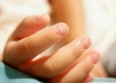 Por qué salen y qué significan las manchas blancas en las uñas