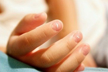 ¿Por qué salen y qué significan las manchas blancas en las uñas?
