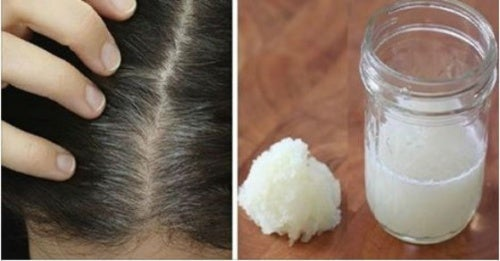 Tratamiento casero de cebolla y miel para combatir la pérdida del cabello