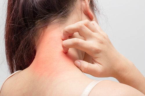 Cómo curar naturalmente los eczemas que causan picor