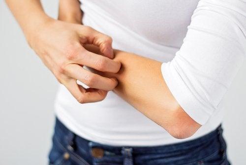Dermografismo: qué es y como se trata