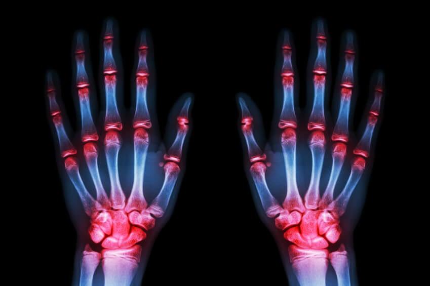"""Según un estudio, en 5 o 10 años habrá tratamiento para """"frenar"""" la artrosis"""
