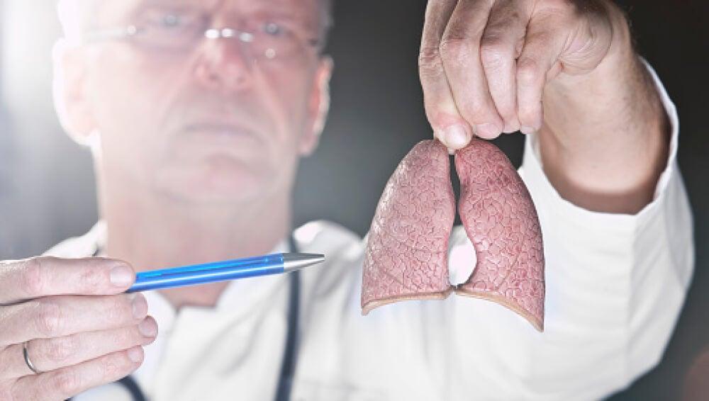 """Nuevas esperanzas: se localiza """"un punto débil"""" del cáncer de pulmón más agresivo"""