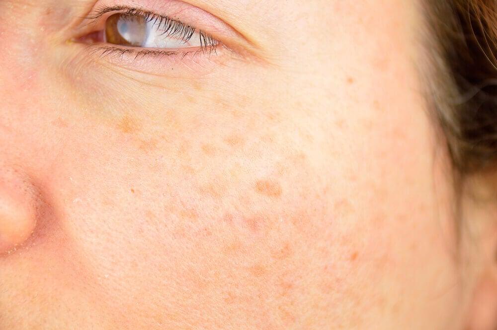 Mujer con manchas en la piel del rostro.