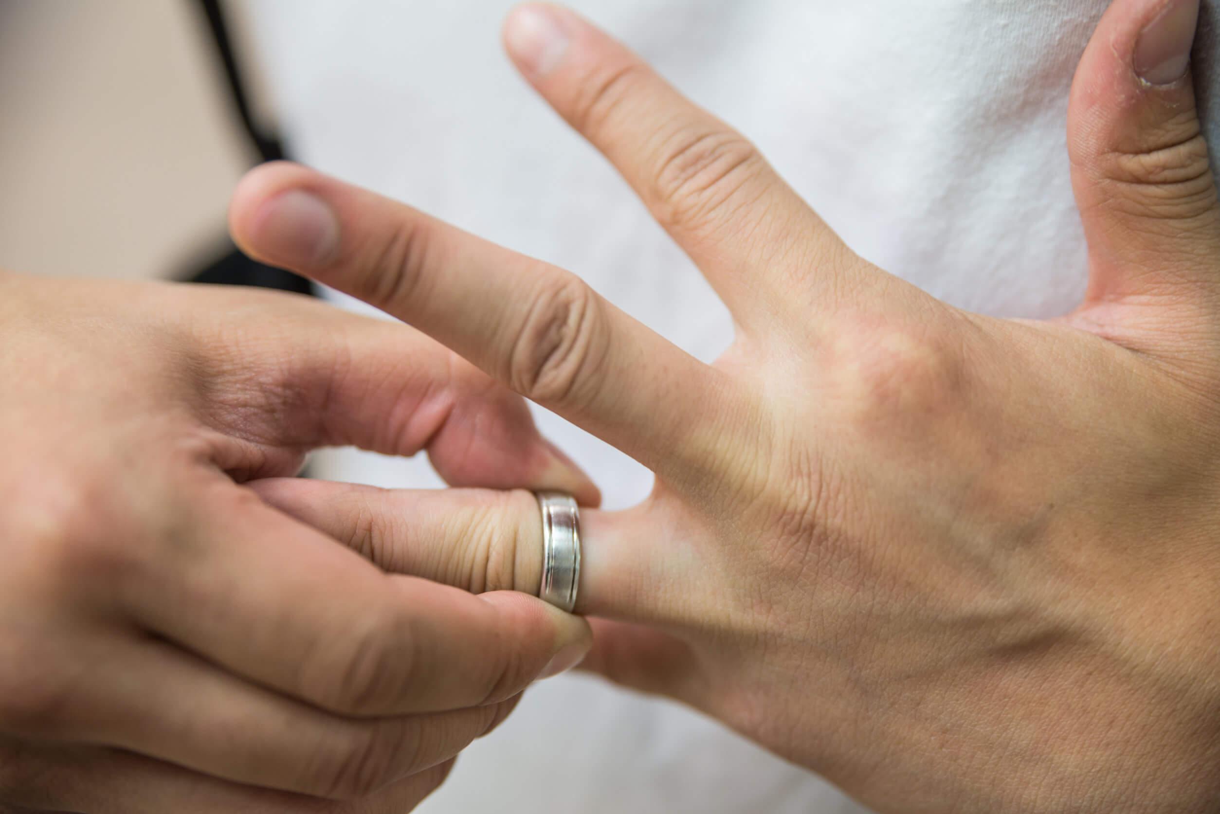 El jabón neutro sirve para extraer un anillo apretado