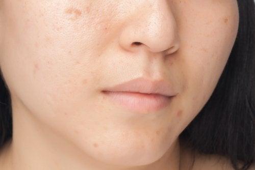 mascarilla para manchas en el rostro