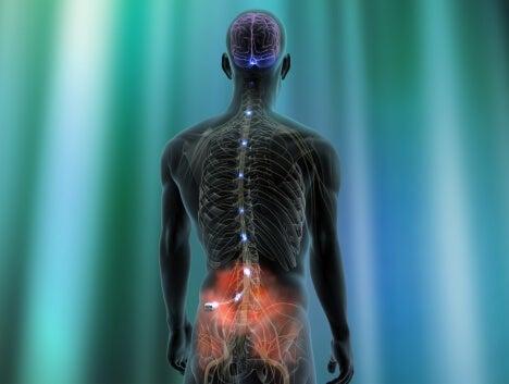 Neurostimulador para el dolor neuropático.