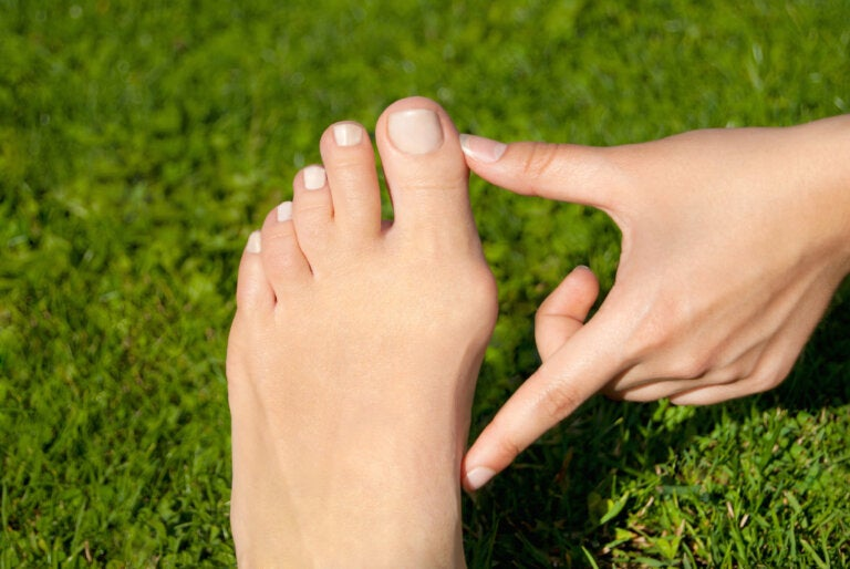 ¿Tienes juanetes en los pies?