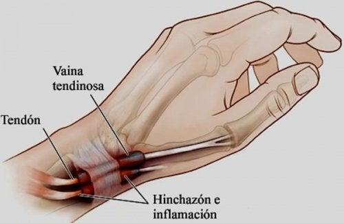 Tenosinovitis: la inflamación en manos o pies que debes conocer