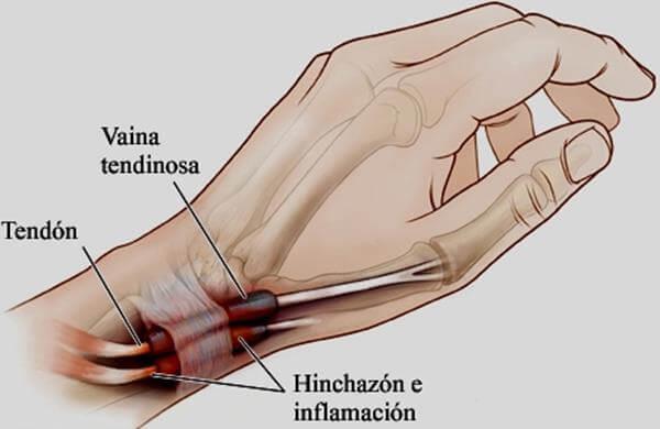 Tenosinovitis La Inflamación En Manos O Pies Que Debes Conocer