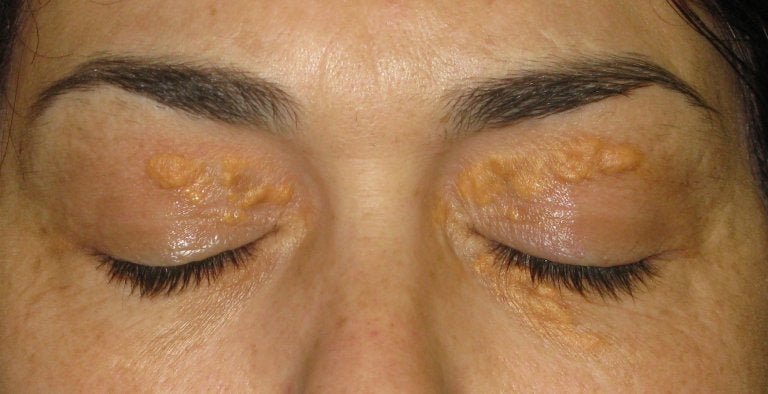 Xantelasmas: esas manchas blancas alrededor de los ojos