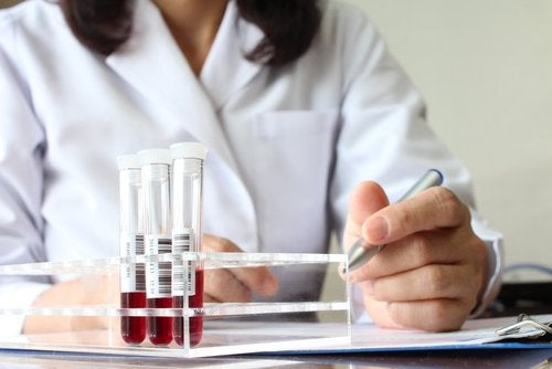 Blood samples being analyzed for anemia