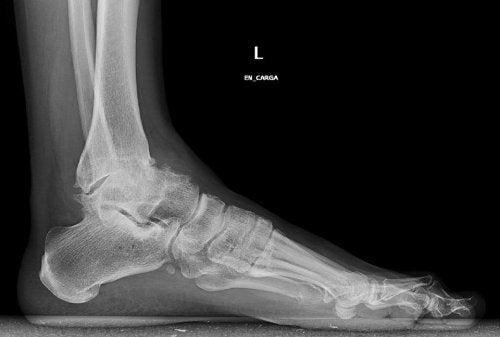 Artrosis-tobillo