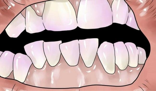 Cómo eliminar el sarro de los dientes de forma natural