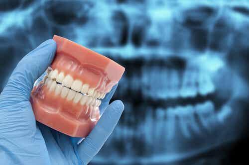 No enderezar los dientes en casa, siempre acudir a un profesional