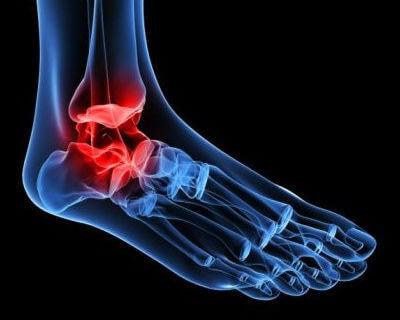 Recreación de tobillo: tendinopatía posterior tibial