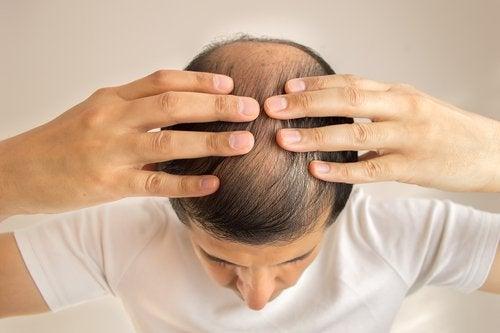 La alopecia localizada puede ser una señal de que tu hígado está sobrecargado