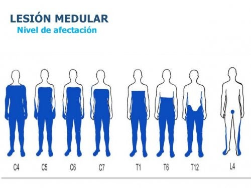 lesion-medular-grado