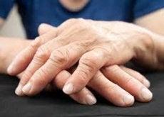nueva-forma-de-tratar-la-artritis