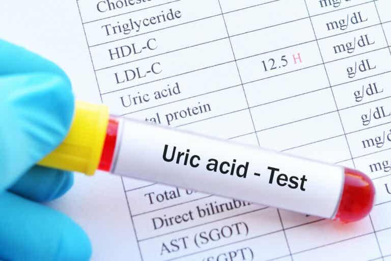 Cómo reducir el ácido úrico con la comida