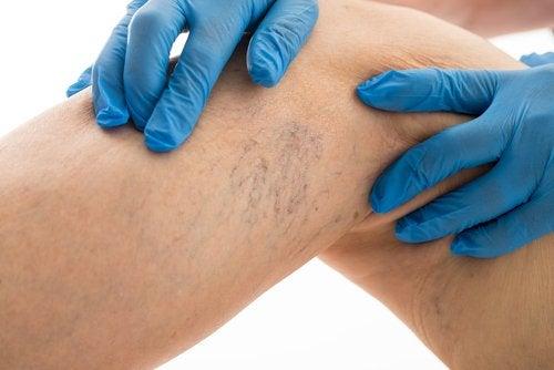 Tratarse venas las varicosas? ¿Cuándo deben