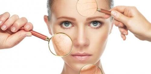 arrugas y flacidez piel