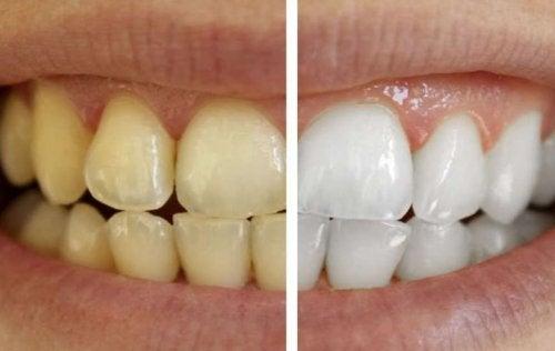 Cuida tus dientes con productos 100% naturales