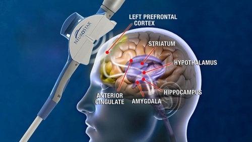 Cerebro de una persona con algunas estructuras senaladas