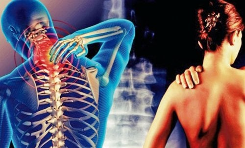 Osteofity sheynogo del departamento de la columna vertebral que esto