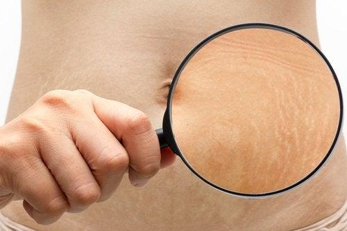 6 trucos para mejorar el aspecto de tus estrías