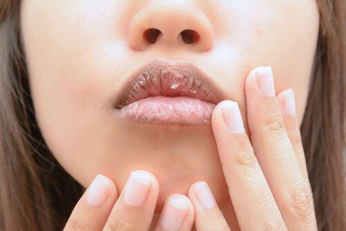Remedios caseros para labios agrietados