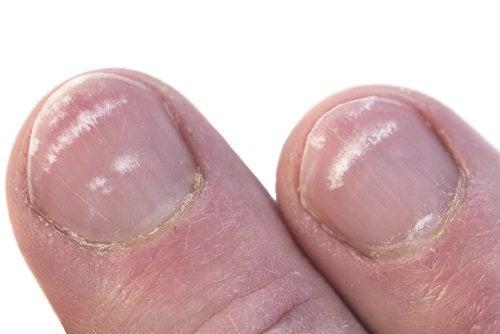 marcas blancas en las uñas