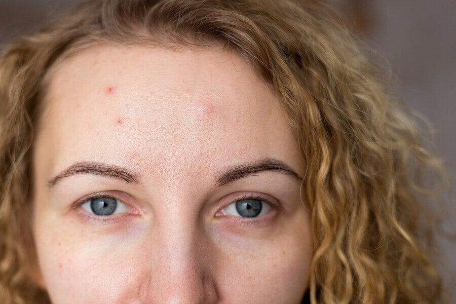 Mujer con brote de acné por ansiedad.