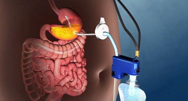 Descubre la nueva técnica para tratar la obesidad grave sin cirugía