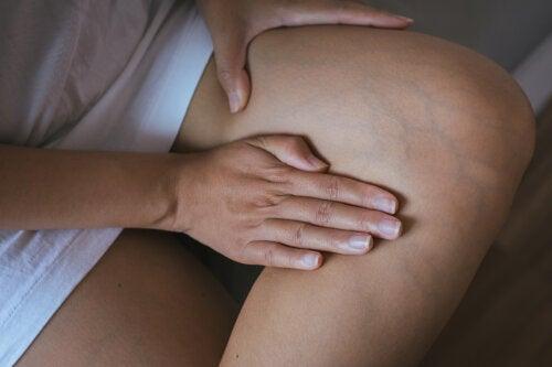 Cómo evitar la retención de líquidos para acabar con la hinchazón corporal