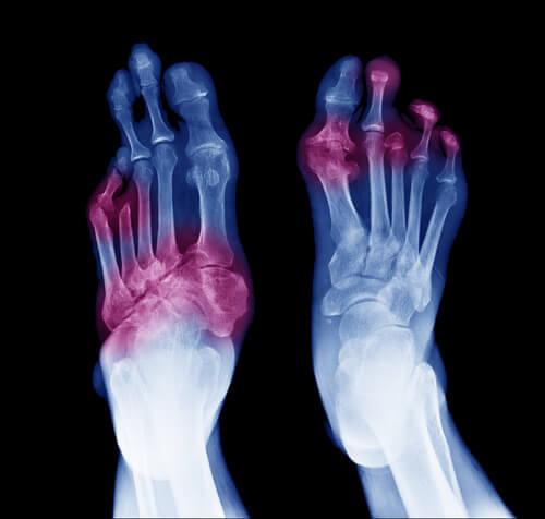 dolor fantasma después de la amputación del dedo del pie por diabetes