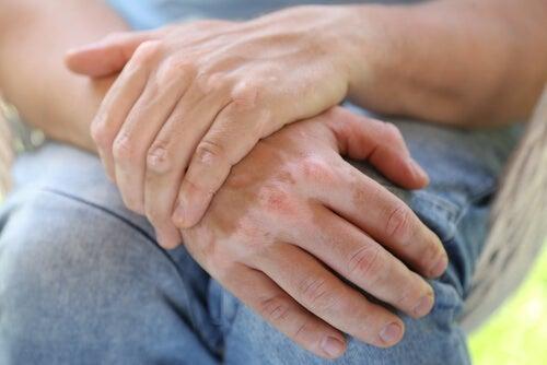 ¿Se puede curar el vitiligo con remedios caseros?