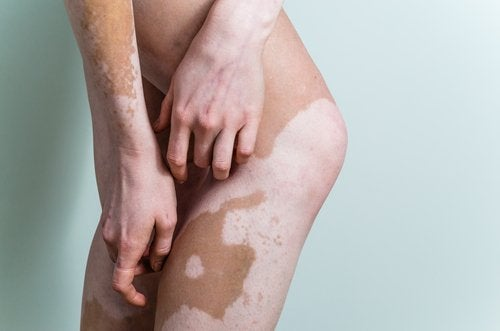 maquillaje corrector en vitiligo