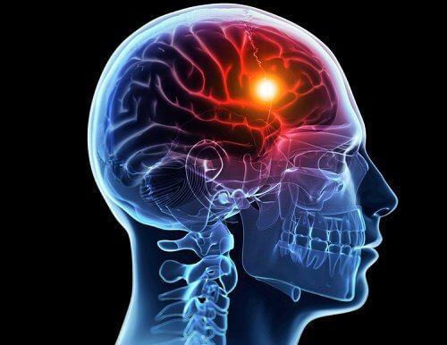 8 advertencias que te da tu cuerpo antes de un infarto cerebral
