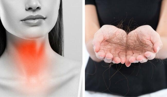8 cosas que puedes hacer para combatir la pérdida del cabello por tiroides