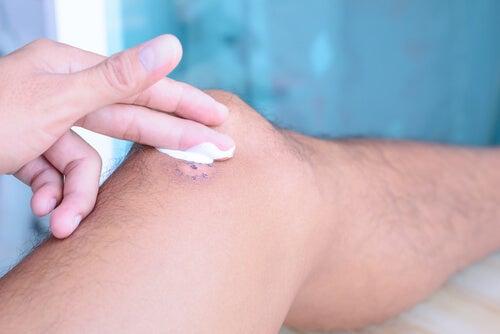 6 antisépticos naturales perfectos para tu piel