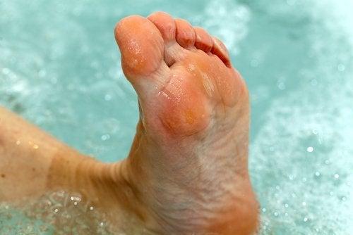 Pies en vinagre: tratamiento del pie de atleta
