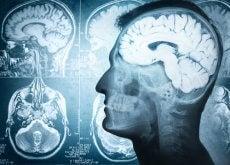 aumentar potencial del cerebro